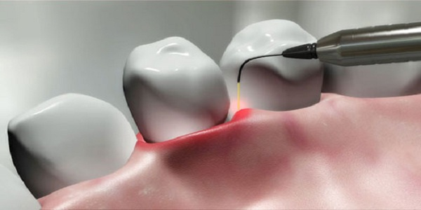 Laser Dentistry | Dentist in Brooklyn Center | Brooklyn Blvd Dental