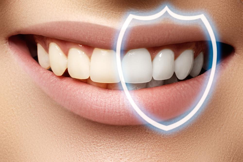 Dental Bonding | Family Dentist in Brooklyn, MN | Brooklyn Blvd Dental