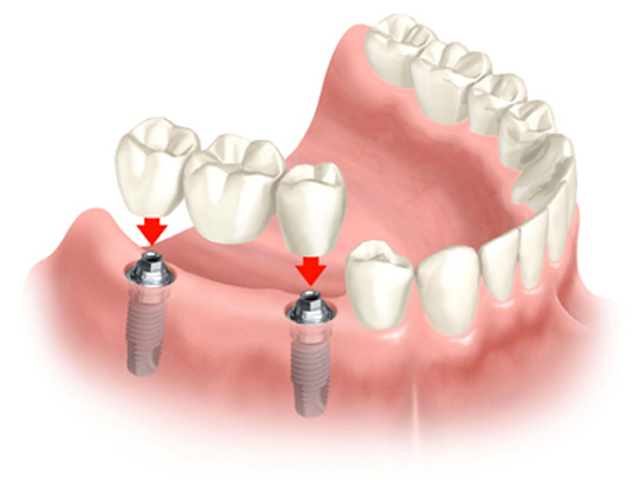 More about Dental Implants-Family Dentist Near Me-Brooklyn Blvd Dental