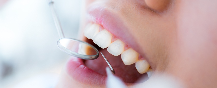 Tips for Healthy teeth during holidays- Dentist | Brooklyn Blvd Dental